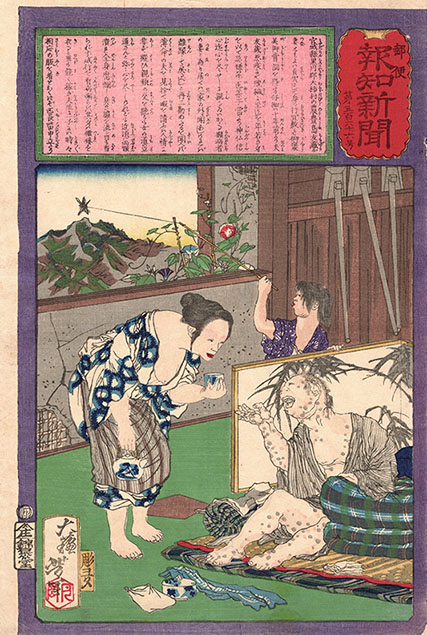 TOSHIMA TOMIYO, THE LOYAL WIFE WHO DID NOT LEAVE HER HUSBAND, EVEN WHEN HE CONTRACTED LEPROSY